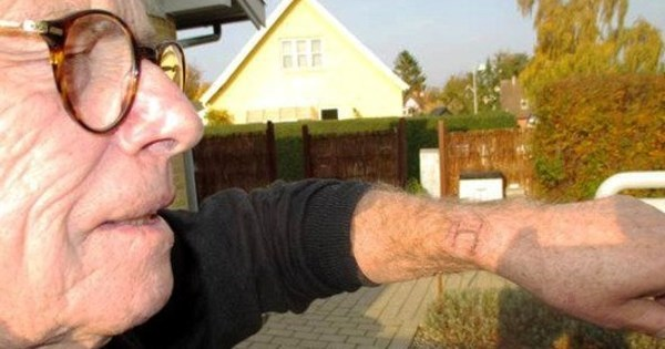 Ouch of The Day: Danish Guy Claims Apple Watch Gave Him 'Severe Burns' on Wrist